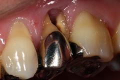 歯根破折を肉眼で確認できることもある